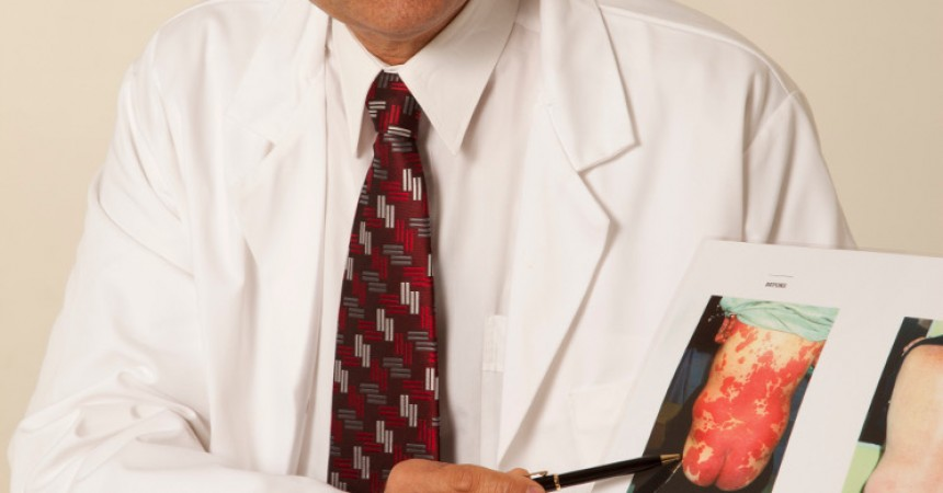 Wpływ stylu życia na zachorowanie na łuszczycę