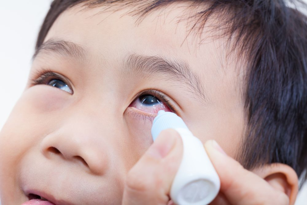 Closeup of parent pouring eye drops in eye her son (conjunctivitis)